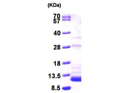 S100B Recombinant Protein