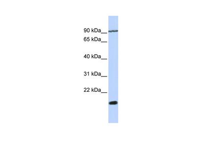 TM4SF4 antibody - N-terminal region