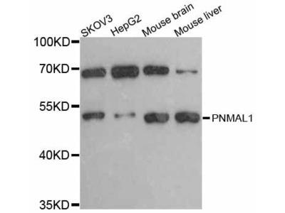 PNMAL1 Polyclonal Antibody