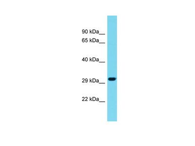 METRNL Antibody - C-terminal region