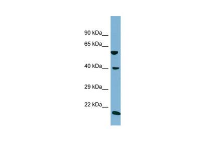 SLC2A10 Antibody - C-terminal region