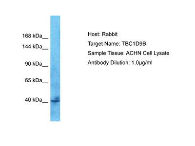 TBC1D9B Antibody - C-terminal region