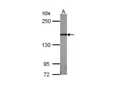 AUTS2 Antibody