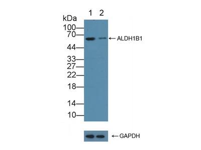 Rabbit Anti-Aldehyde Dehydrogenase 1 Family, Member B1 Antibody