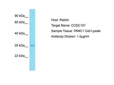 CCDC107 Antibody - C-terminal region