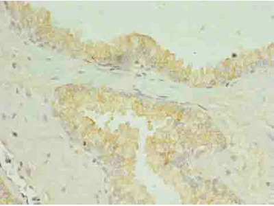 SLC34A2 Antibody