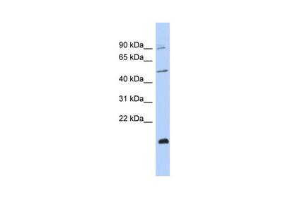 CBLL2 Antibody - middle region