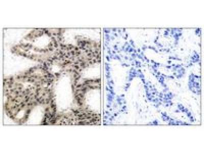 4E-BP1 antibody