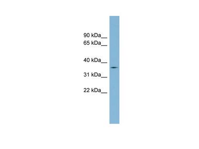 TMPRSS12 antibody - middle region