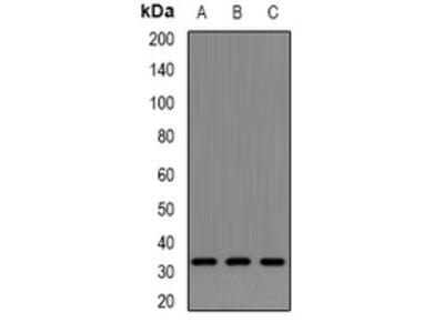 Anti-Neurotrophin 4 Antibody