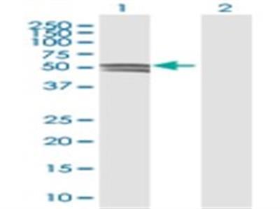 Glucosaminyl (N-acetyl) Transferase 1 / GCNT1 Antibody