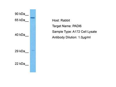 PADI6 Antibody - middle region