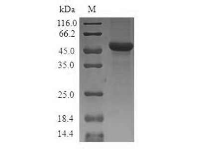 Recombinant Human Mitochondrial ornithine transporter 1 (SLC25A15)