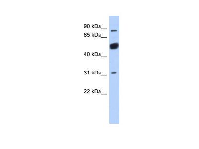 CXorf20 antibody - middle region