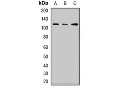 Anti-SOX30 Antibody