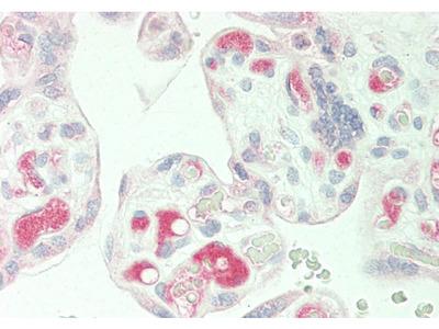 PLA2G2E antibody - middle region