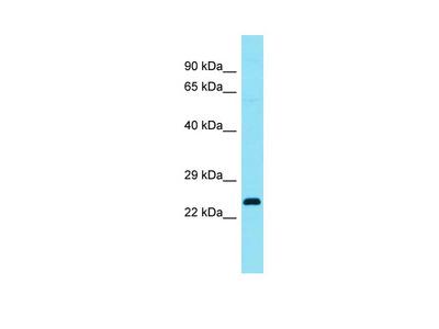 C4orf45 Antibody - C-terminal region