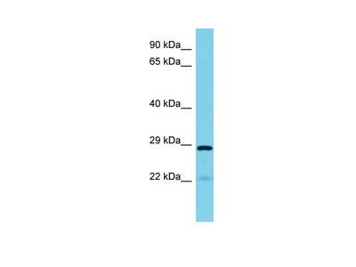 PYCR3 Antibody - N-terminal region