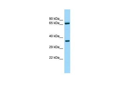 ALDH16A1 Antibody - N-terminal region