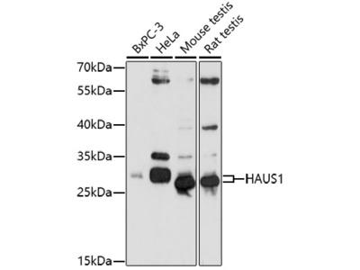 HAUS1 Polyclonal Antibody
