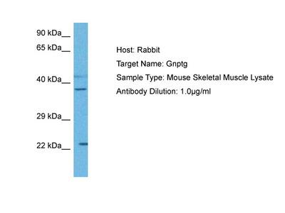 GNPTG Antibody - middle region