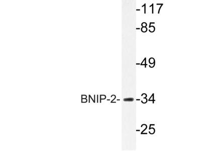 BNIP-2 Antibody