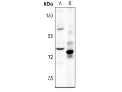 Anti-Chromogranin B Antibody