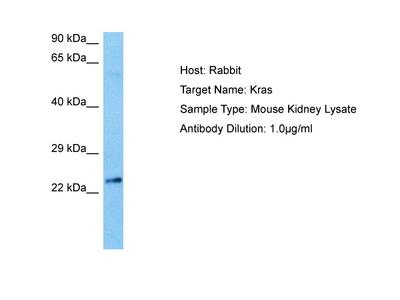 KRAS antibody - N-terminal region