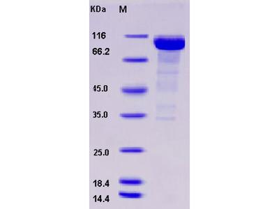 Recombinant Human Alkaline Phosphatase / ALPI Protein (Fc tag)