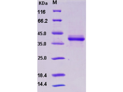 Recombinant Human S100A1 Protein (Fc tag)