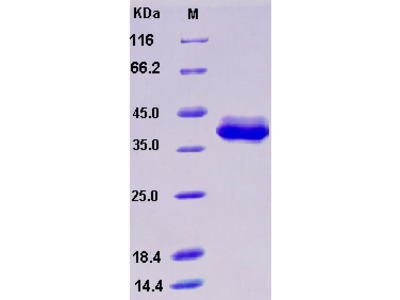Recombinant Human S100B Protein (Fc tag)