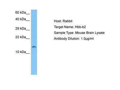 HBB-B2 Antibody - middle region