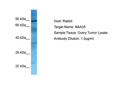 NAA35 Antibody - N-terminal region
