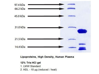 Lipoproteins; High Density; Human Plasma; Suitable for Cell Culture