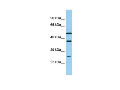NUDT14 Antibody - N-terminal region