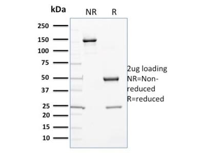 Cytochrome P450 3A1/CYP3A1 Antibody