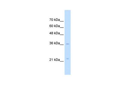 LAPTM4A antibody - middle region