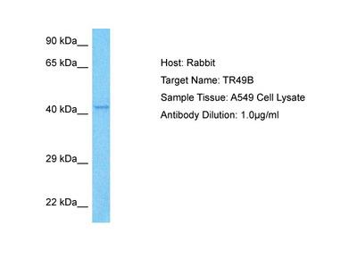 TRIM49B Antibody - N-terminal region