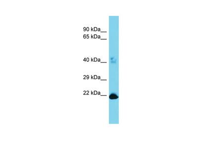 METTL26 Antibody - N-terminal region