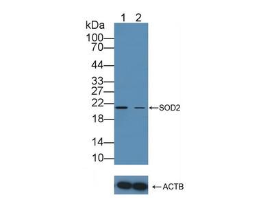 Rabbit Anti-Superoxide Dismutase 2 Antibody