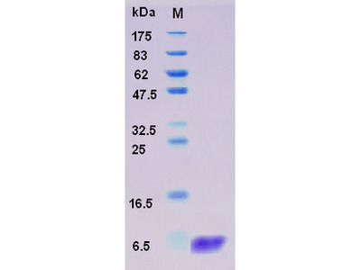 Recombinant Human S100A2 Protein