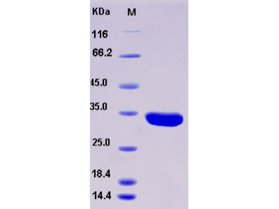 Recombinant Human ANXA5 / Annexin V / Annexin A5 Protein