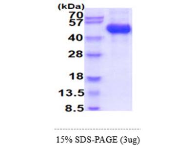 CSF2RA, 20-320aa, Human, His-tag, Baculovirus (Bioactivity Validated)