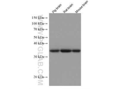 alpha-SNAP Antibody (1E2A2)