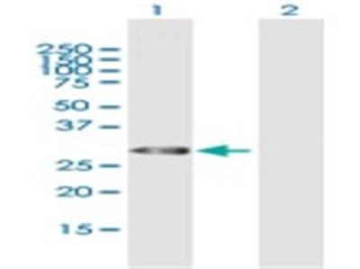 Thyrotropin Releasing Hormone Antibody