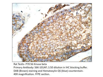 P70 S6 Kinase beta Antibody
