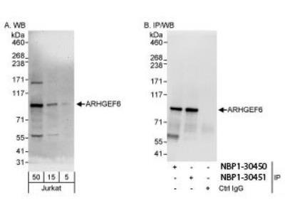 Rabbit Polyclonal ARHGEF6 Antibody