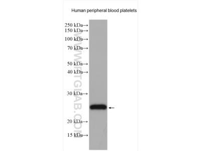 CD42c Polyclonal Antibody