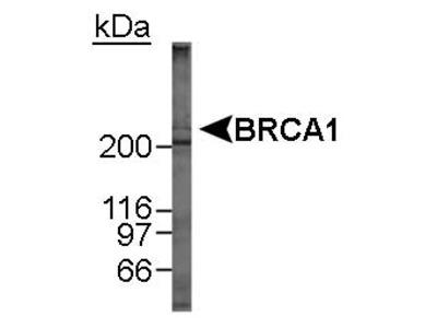 Anti-BRCA1 Antibody