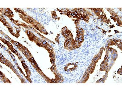 Anti-TTF-1 (Thyroid Transcription Factor 1) Antibody